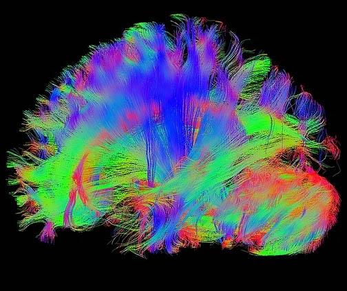 MRT Brain